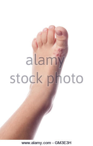 Eczema, atopic dermatitis. Close up of eczema on the skin of the kid's foot - Stock Photo