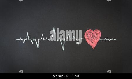 Heartbeat Diagram - Stock Photo