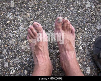 Badly blistered feet along the Camino de Santiago,Spain - Stock Photo