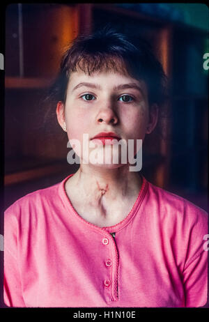 Medical center of Kiev child with thyroid cancer after the Chernobyl nuclear accident, operated by incompetent doctors - Stock Photo