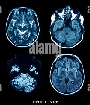 set of MRI scans on black - Stock Photo
