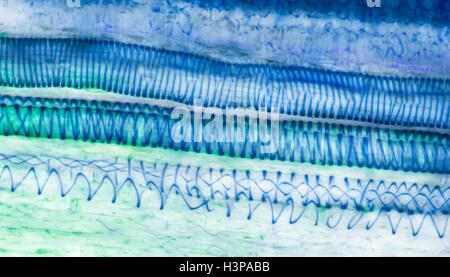 Light micrograph of a section through tissue from a ... Xylem Tissue Type