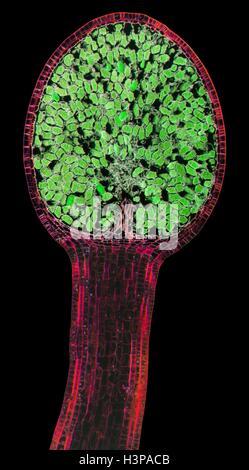 Liverwort spore capsule. Light micrograph (LM). Longitudinal section through the thallus and sporangium of a liverwort - Stock Photo
