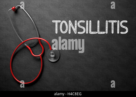 Tonsillitis - Text on Chalkboard. 3D Illustration. - Stock Photo