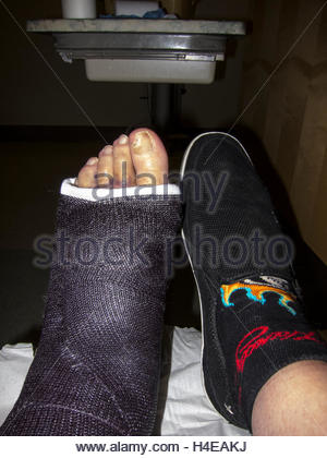 In hospital. Broken left ankle- bruises and swelling on toes and pain indicated a problem, verified after this cast - Stock Photo