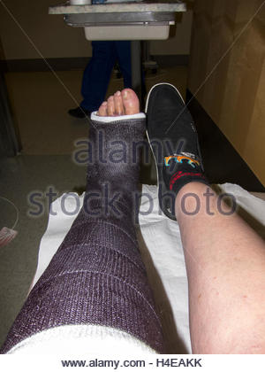 In hospital. Broken left ankle- bruises and swelling on foot and toes indicated a problem, verified after this cast - Stock Photo