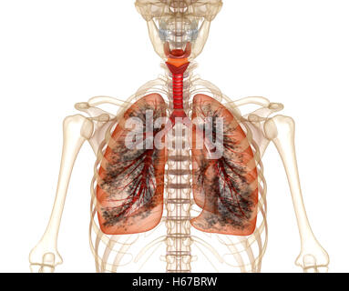 Diseased lungs, Medical accurate 3D illustration - Stock Photo
