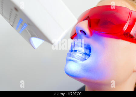 Plastic Mouth Guard Stock Photo Royalty Free Image