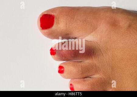 A woman's foot with a broken toe showing bruised area on second toe - Stock Photo