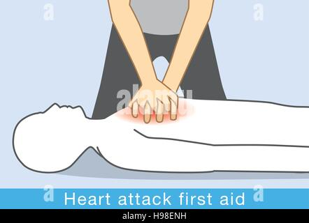 Hand push hard and fast in the center of chest of Heart attack people. - Stock Photo