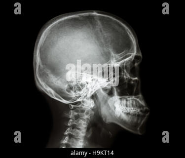 Lateral View of Cervical Spine Stock Photo: 39487957 - Alamy X Ray Views Of Skull
