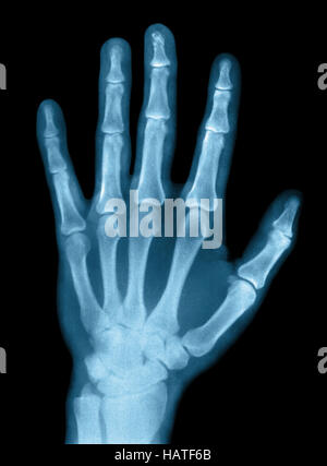 X-Ray Photograph - Stock Photo