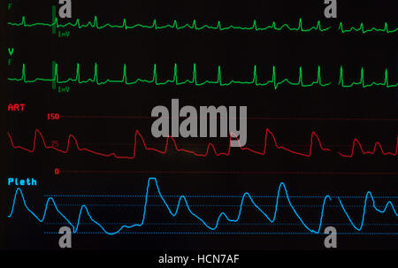 A Line Arterial Monitoring : Image
