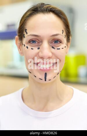 Facelift. Blepharoplasty. Rhytidoplasty. It involves stretching the facial skin in order to remove wrinkles. Before - Stock Photo