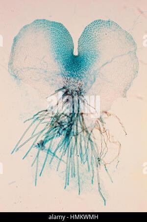 Fern prothallium (Pteridium sp), seen under a microscope. - Stock Photo