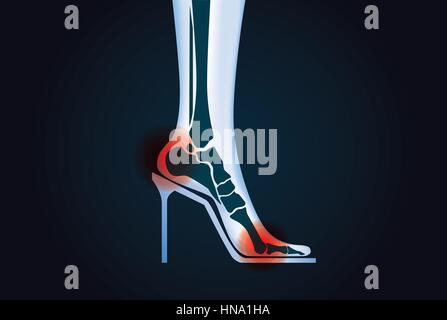 Red signal at foot bone area because wearing high heels. This illustration about health care. - Stock Photo