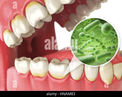 Bacterias and viruses around tooth. Dental hygiene medical concept. 3d illustration - Stock Photo