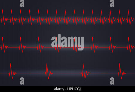 medicine illustration of heart pulsating fast normal and slow - Stock Photo