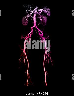CT Angiogram of Abdomen and Legs - Stock Photo