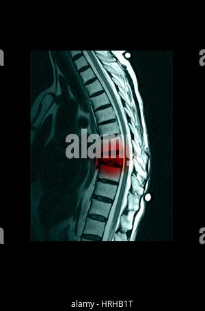 Spinal Compression Fracture - Stock Photo