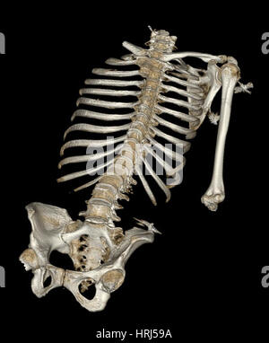 Skeletal Reconstruction - Stock Photo