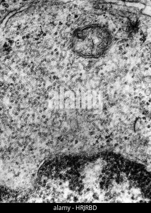 Paramyxovirus, Mumps Virus, TEM - Stock Photo
