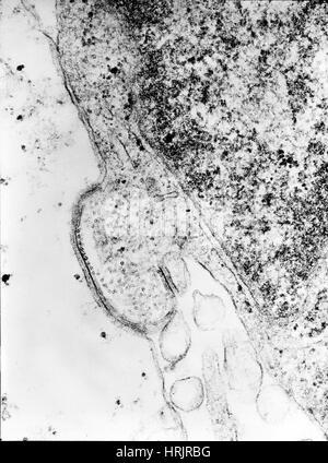 Human Parainfluenza Type 4A Virus, TEM - Stock Photo