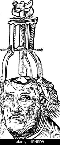 Trepanning, 1525 - Stock Photo