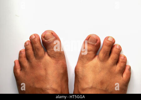 When a Stubbed Toe Is Serious | HuffPost Life