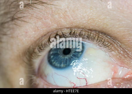 sun burn damage to eye, known as pinguecula causes a hardening, Skeleton