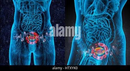 3D rendering medical illustration of the bladder pain - Stock Photo