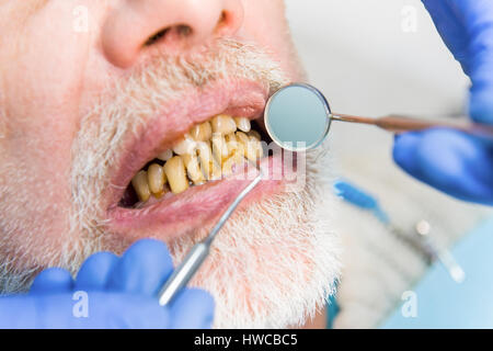 Mouth mirror and bad teeth. - Stock Photo