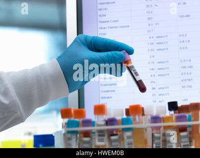 Blood analysis, Haematologist preparing medical samples including blood for testing with results on the computer - Stock Photo