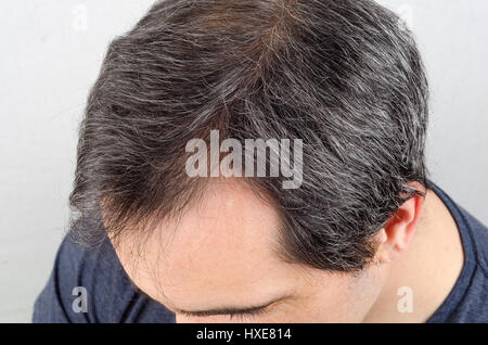 Mature man hair loss problem. health care shampoo and beauty product concep - Stock Photo