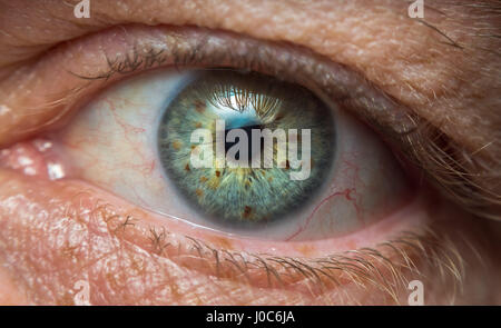 High detail close-up of a human eye with a lot of brown pigment spots. - Stock Photo