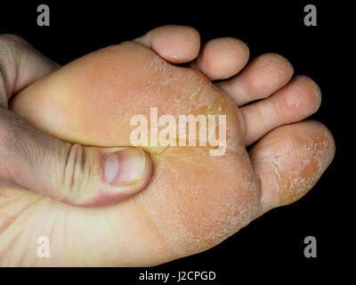 Skin peeling off from under foot, examined by podiatrist, at closeup towards black - Stock Photo