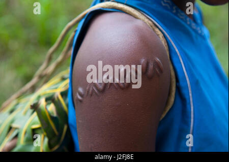 Local girl with typical scar near, Volcano Yasur, Island of Tanna, Vanuatu, South Pacific - Stock Photo