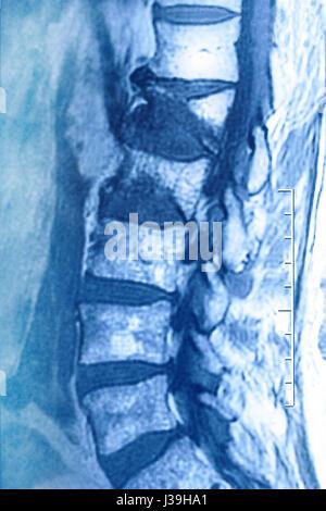 COMPRESSION FRACTURE, MRI - Stock Photo