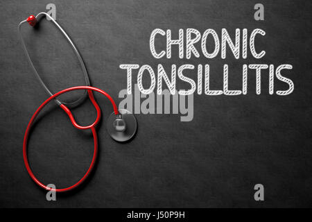 Chronic Tonsillitis - Text on Chalkboard. 3D Illustration. - Stock Photo