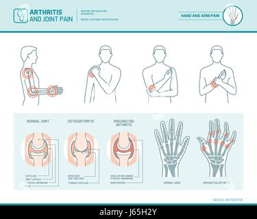 Arthritis and joint pain infographic, anatomic illustration of an inflammed hand and arm - Stock Photo