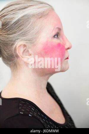 Side view of a Caucasian woman in her late fifties has an autoimmune disease or Rosacea that has caused a severe - Stock Photo