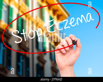 Man Hand writing Stop Eczema with black marker on visual screen. Isolated on city. Business, technology, internet - Stock Photo