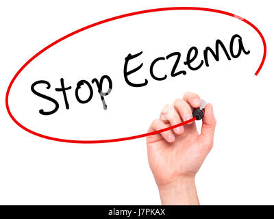 Man Hand writing Stop Eczema with black marker on visual screen. Isolated on white. Business, technology, internet - Stock Photo