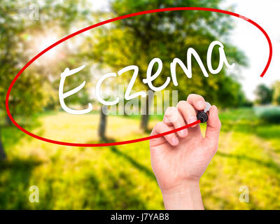 Man Hand writing Eczema with black marker on visual screen. Isolated on background. Business, technology, internet - Stock Photo