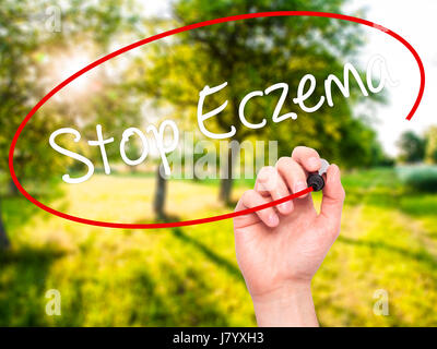 Man Hand writing Stop Eczema with black marker on visual screen. Isolated on nature. Business, technology, internet - Stock Photo
