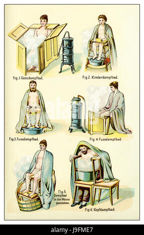 Various kinds of steam bath,vintage illustration - Stock Photo