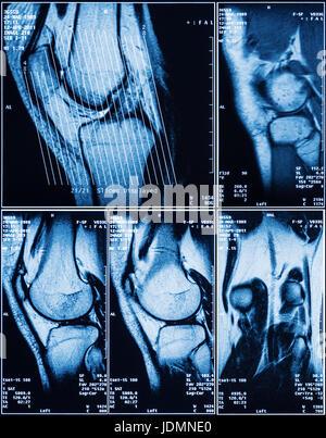 Human Knee MRI for Medical Diagnosis - Stock Photo