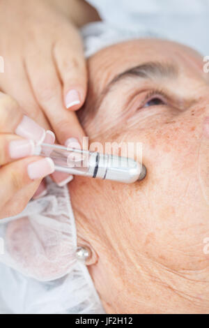 Microdermabrasion treatment on a senior woman face - Stock Photo