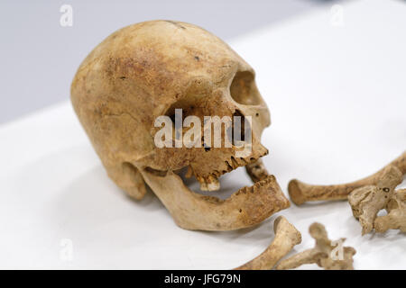 Human skull and bones isolated on white background - Stock Photo