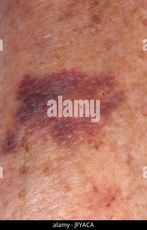 hematoma on the arm of an elderly woman - Stock Photo